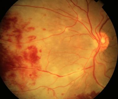retinite cmv